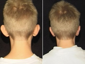 otoplasty-kid-before-and-after