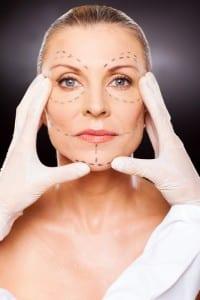 Facelift Surgery Markings