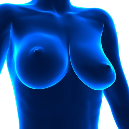 Illustration of Ruptured Implant Breast Asymmetry