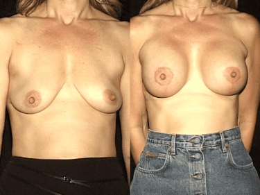 Breast Lift Patient Before and After Photos