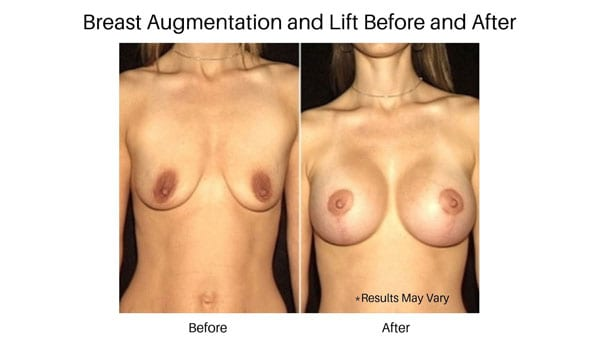 A before and after image of a woman who has undergone a breast augmentation and lift to address tissue sagging.