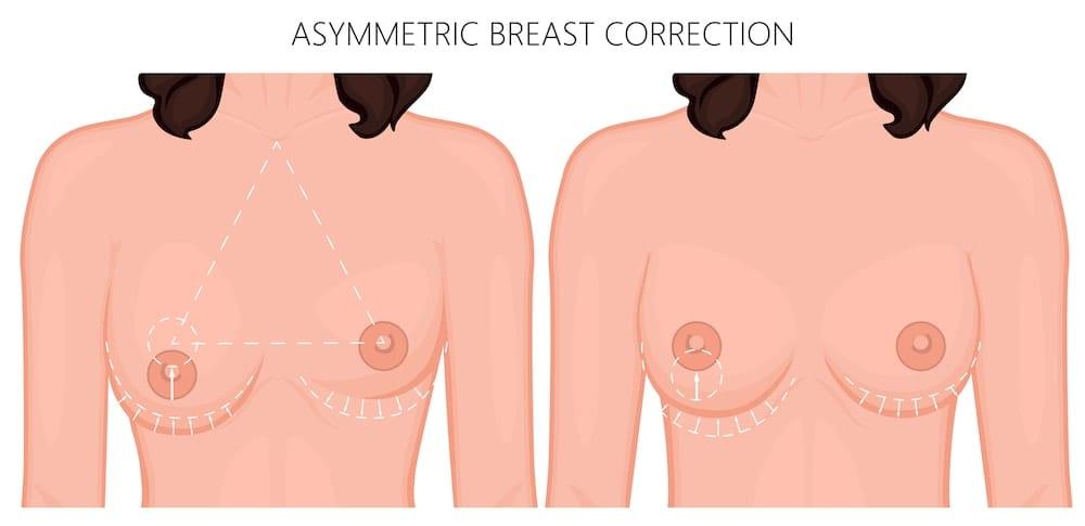 Diagram of Asymmetric Breast Correction
