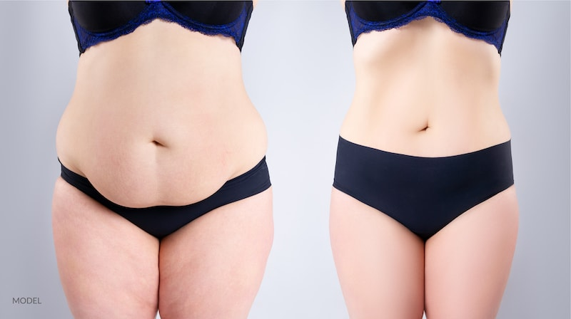 Image of a model showing their before and after results of a tummy tuck.